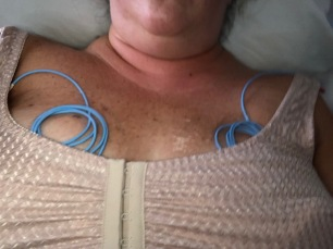 Right out of surgery- those lines on my chest are the Doppler's they will hook up to make sure I have good blood flow.